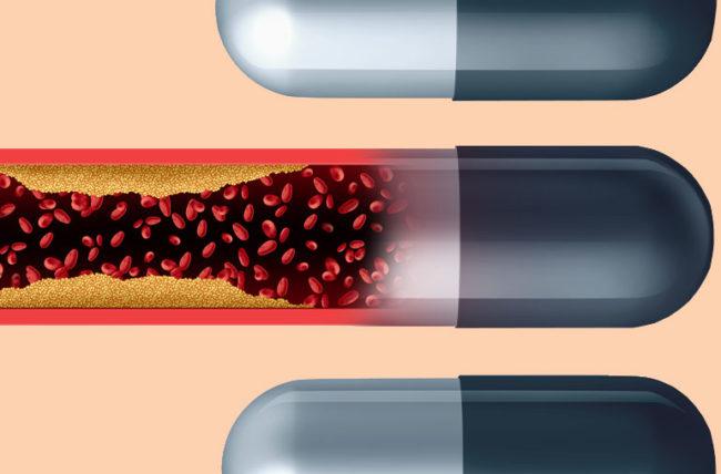 Οι αναστολείς της αντλίας πρωτονίων αυξάνουν τον κίνδυνο καρκίνου του στομάχου